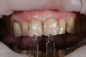 Photo of composite veneers technique using Uveneer dental templates.
