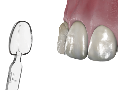 direct-composite-veneers-template-uveneer