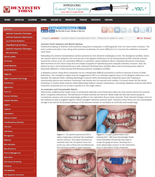 direct-composite-diastema-closure